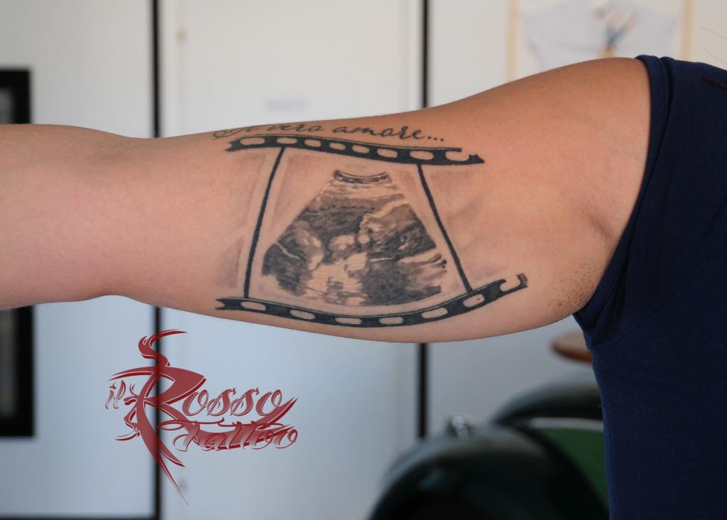 Tattoo ecografia guarito